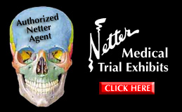 Netter Medical Trial Exhibits
